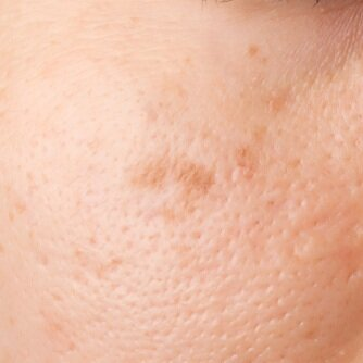 Skin Tag Removal Brown Spot Removal Wart Removal North London