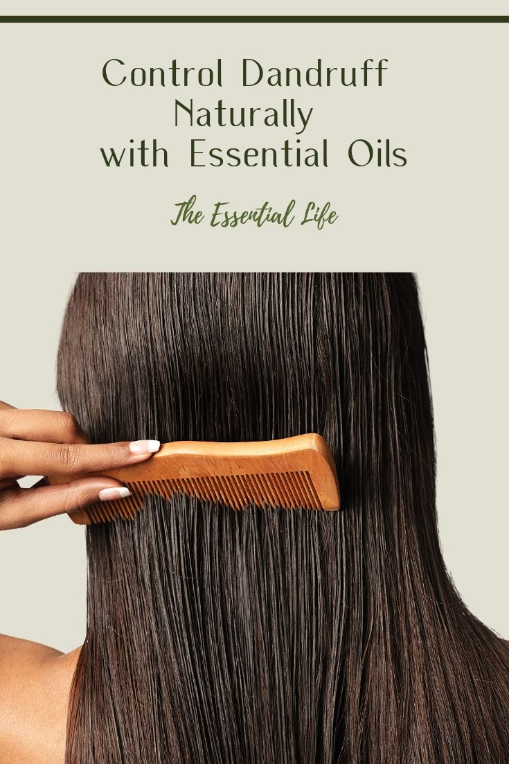 Control Dandruff Naturally with Essential Oils_ The Essential Life.jpg