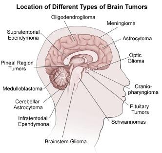 brain+tumors.jpg