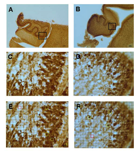 Figure 1: Decreased calbindin immunostaining in cerebellum of P0 mice exposed to ethanol (A-F). Images of slices of whole mouse cerebella taken at 4X magnification (A-B) are labeled with an inset indicating the lobule section imaged at 40X magnification (C-F) for data collection and analysis. Calbindin immunostained P0 mouse cerebella exposed to tap water and ethanol, respectively at 4X magnification (A-B). Calbindin immunostained P0 mouse cerebellum exposed to tap water and ethanol, respectively at 40X magnification (C-D) and superimposed with 90 micron2 grid with unstained reference (highlighted in red) and regions of interets (ROIs) (highlighted in green) containing calbindin immunostained Purkinje cells (E-F). Based on visual observation, sections of P0 mouse cerebella prenatally exposed to ethanol (B, D, and F) appear to exhibit less intense calbindin immunostaining than controls exposed to tap water (A, C, and E). No differences in Purkinje cell number are discernable.