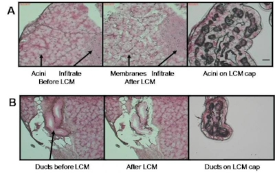 Figure 1. Laser capture microdissection (LCM) of mouse lacrimal gland acini and ducts. Laser spot size 7.5 m, pulse duration 8 msec, power 80 mW. A. Before LCM acini are seen with an adjacent lymphocyte infiltrate. After LCM acinar membrane fragments remain on the slide and the infiltrate is intact. The acinar cells adhere to the LCM cap in the absence of lymphocytes. B. Three ducts with adjacent connective tissue and acini before LCM. After LCM duct membrane fragments, connective tissue and acini remain on the slide, while duct cells adhere to the LCM cap. Bar = 25 μm