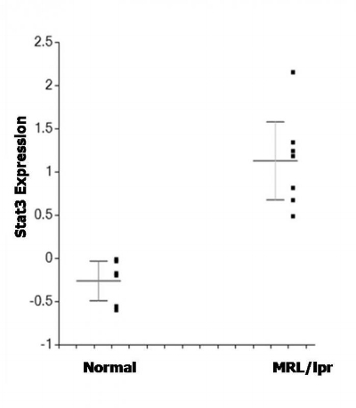 Figure 7. Elevated expression of signal transduction and activator of transcription 3 (Stat3) in lacrimal gland cells of MRL/lpr mice as compared to normal mice. Gene expression is expressed as log2 compared to reference standard. The difference in levels of Stat3 expression is significant (p=0.0005).