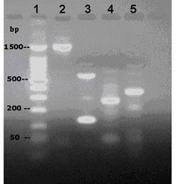 Figure 2. PCR amplification of S. tenjimariensis DNA using designed primers. Lanes: 1, 100 bp DNA ladder; 2, DOI; 3, AMT; 4, Alpha amylase; 5, 16S rDNA.