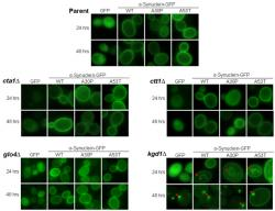 Figure 1. α-Synuclein Localization in Oxidative Stress and Mitochondrial Mutants; Images captured of budding yeast at 24 and 48 hours of α-synuclein expression are shown at 1000x. Here, α-synuclein is tagged to green fluorescent protein (GFP) on the carboxyl-terminus, which allows for analysis of its localization when illuminated at 488 nm. Along with wild-type (WT) α-synuclein, localization of two α-synuclein familial mutants, A30P and A53T, are also shown. All strains show plasma membrane localization of α-synuclein at 24 and 48 hours of induction as described in Sharma et al. (2006). However, only kgd1∆ cells display intracellular aggregates at 24 hours and aggregates near the plasma membrane at 48 hours of α-synuclein expression.