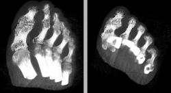 Figure 7: A pair of images showing the bones of a human foot in different orientations. The same region (in this example the bones of the big toe & the adjacent toe) has been illustratively rendered with the stipple technique in both images