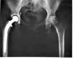 This is an X-ray image of a patient's metal right hip replacement. ER Scribes are constantly exposed to such medical technology, and therefore gain an advantage in reading X-rays upon entering medical school. Image courtesy the National Institute of Health, posted on Wikimedia Commons.