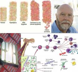 top left - progression of cancer, NIH top right - Craig Venter bottom left - Solar cell bottom right - production of stem cells