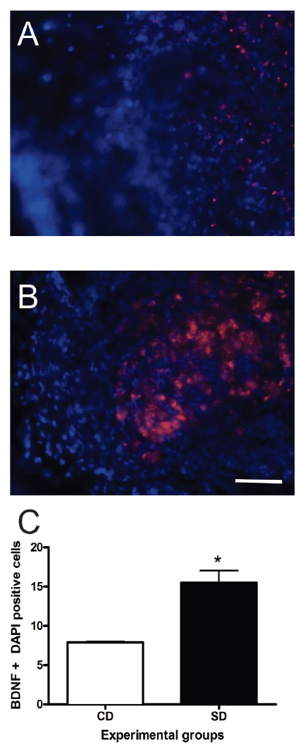 Figure 1. The impact of supplemental diet (SD) after ischemic damage on brain-derived neurotrophic factor (BDNF).  Representative images of brain tissue stained with BDNF (red) and DAPI (blue) at the damage site from CD (A) and SD (B) mice. Quantification of BDNF and DAPI positive cells within the damage site (C). * indicates a p < 0.05. All pictures at 400X magnification, scale bar = 50 µm.