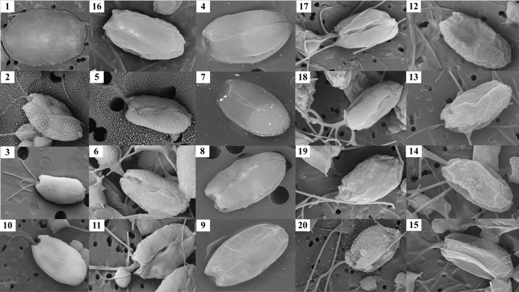 Figure 2. Correlative SEM images of  T. chuii  cells numbered by their respective protocols (Table 5).  Scale bar = 10 µM.
