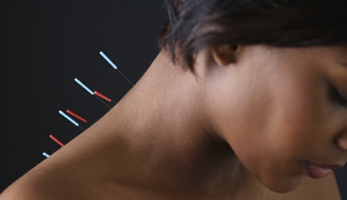 Acupuncture, Lucy Mei Lee