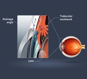 p_glaucoma.jpg