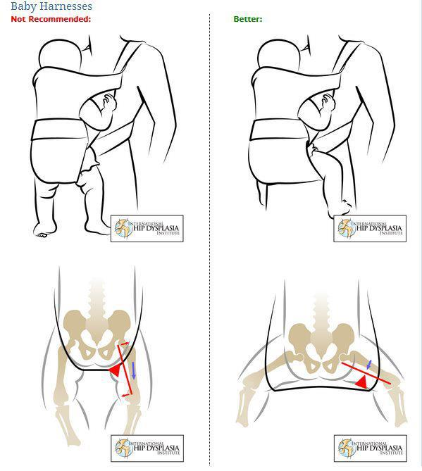 hip-dysplasia-carriers1.jpg