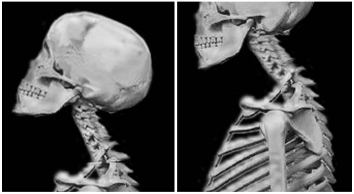 Figure 4: In a surprising finding, participants who fared poorly on Go/No-Go also tended to hold their heads habitually in an extended position (left). Participants who did poorly on Stroop had habitual forward head posture (right). Why this difference? Does struggling with different kinds of inhibition manifest differently in posture and movement?