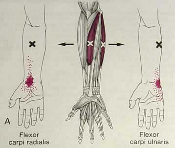 fcr tunnel syndrome