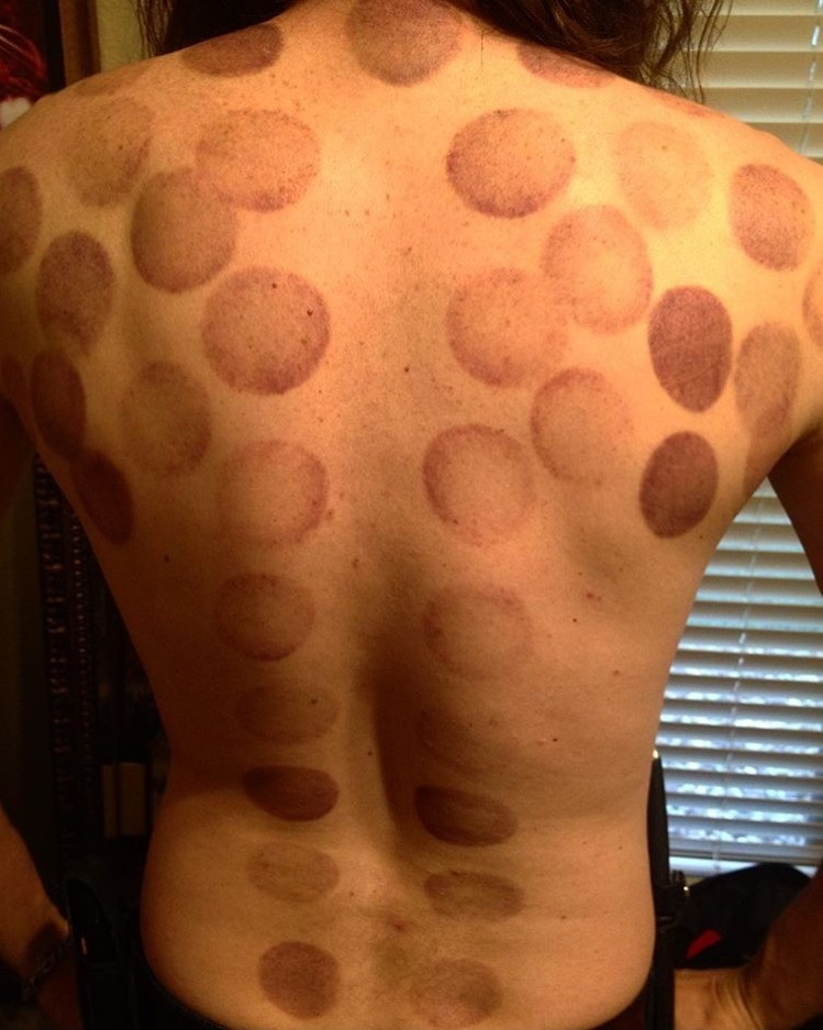 aftercupping.jpg