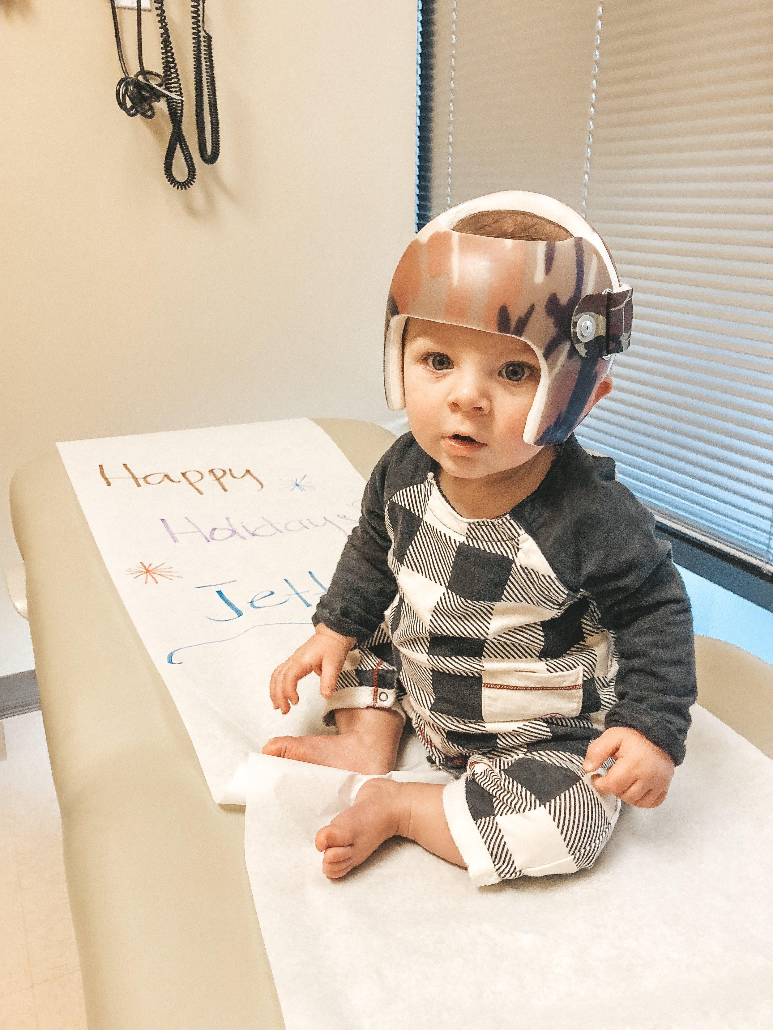 Jett Jones. 8 Months Old. Helmet for flat head. Starband helmet..