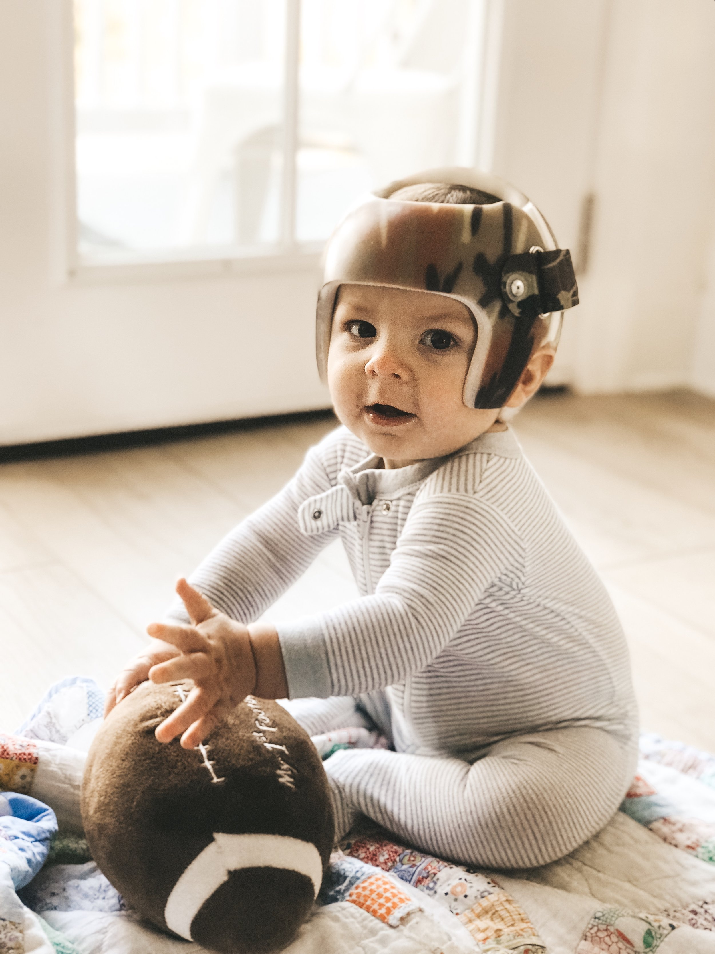 Jett Jones, 8 Months Old.  Camo starband helmet from Hanger clinic.