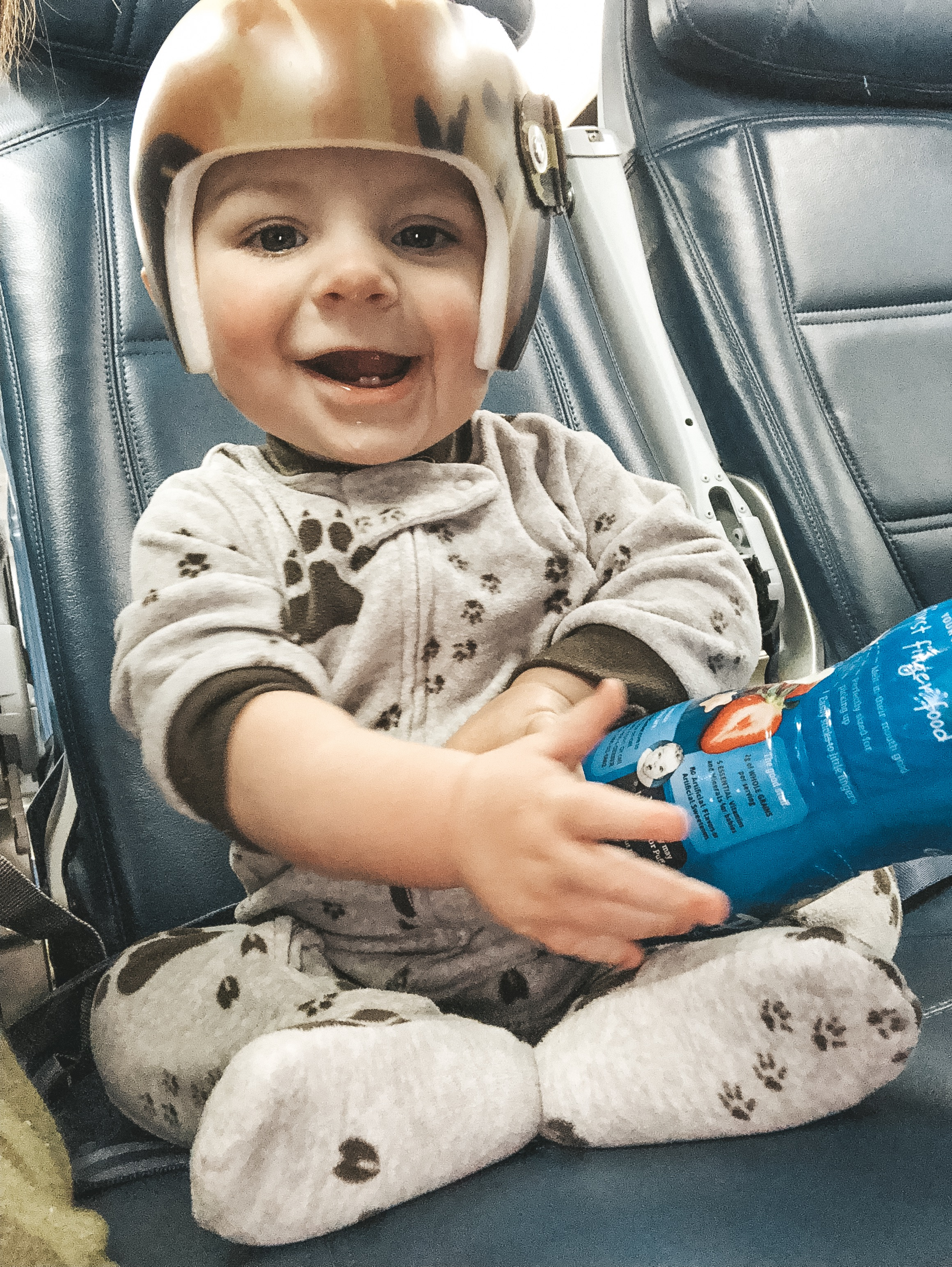 Jett Jones, 8 Months Old.  Flying with an 8 Month Old. Helmet treatment for Plagiocephaly.