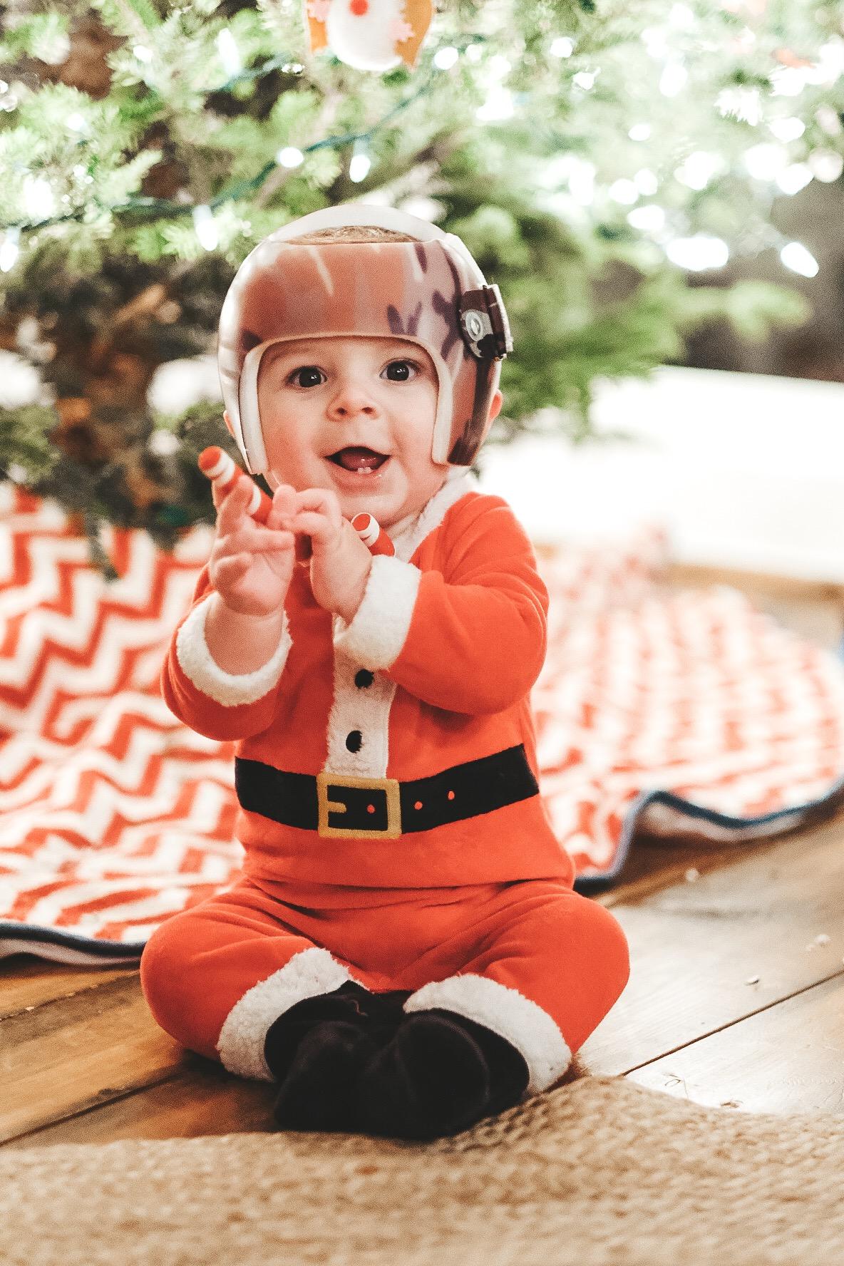 Jett Jones, 8 Months Old. Christmas baby photos.  Starband helmet. Helmet treatment for Plagiocephaly.