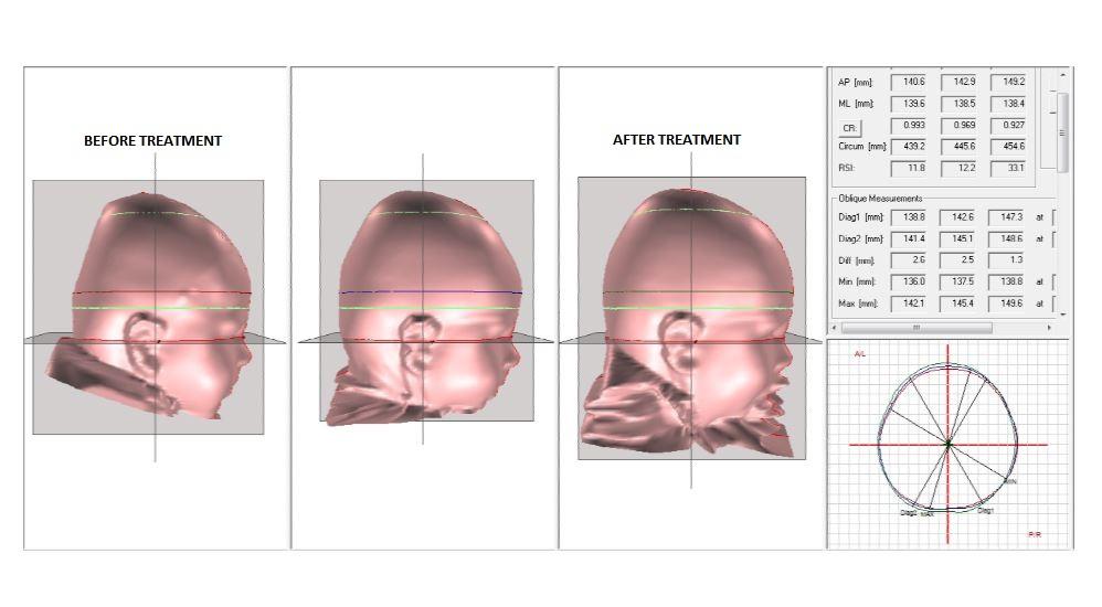 Jett Jones Before and After Helmet Treatment for Flat Head Brachycephaly.
