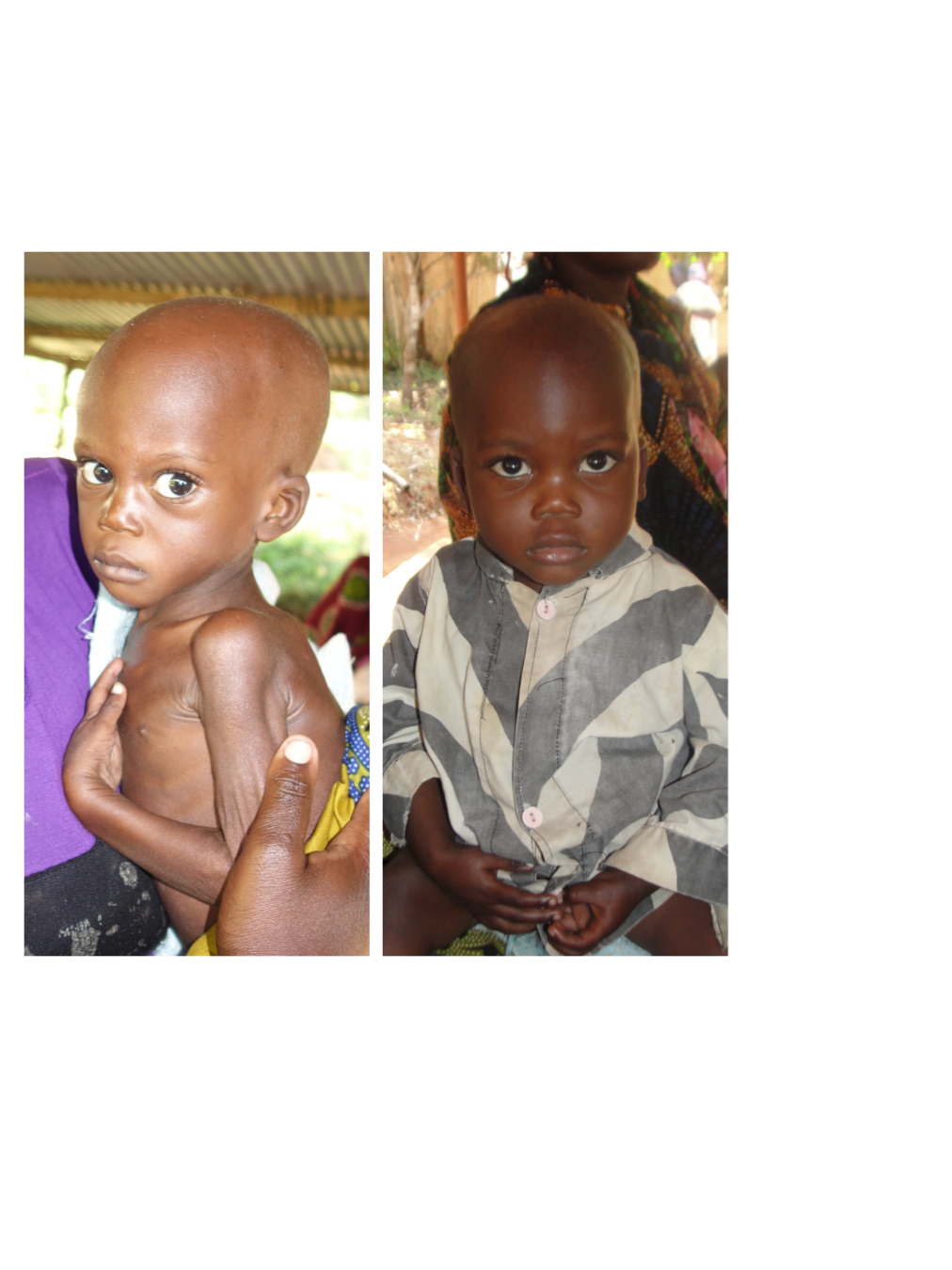 Meet Greyson - Greyson (age 1 year, 8 months) was referred to Maisha Matters by Geita Regional Hospital for concerns of severe malnutrition. At the time he weighed 5.97 kgs (13.1 lbs). After working with him closely for a couple of weeks, Neema House staff recognized possible signs of TB and took him to the clinic for testing and medication. Within 6 weeks of treatment and nutritional support, Greyson had gained 3 kgs (6.6 lbs). He has now regained strength to sit and play and has even begun walking and catching up on other developmental skills.