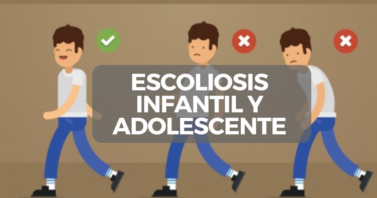tratamiento para la escoliosis en adultos