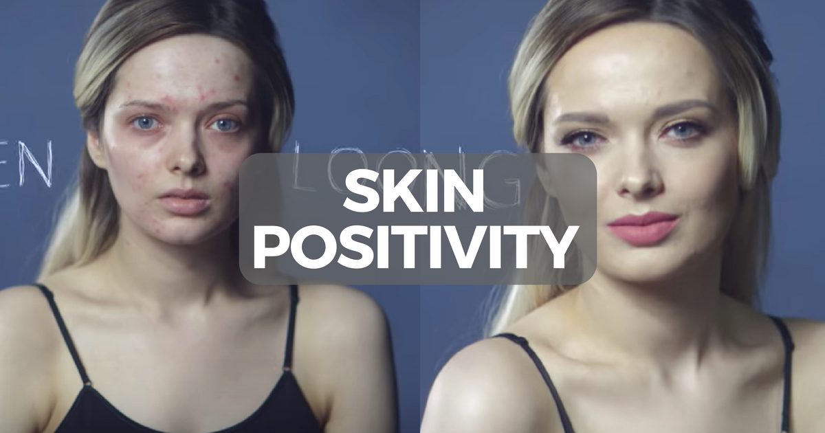 Skin Positivity.png