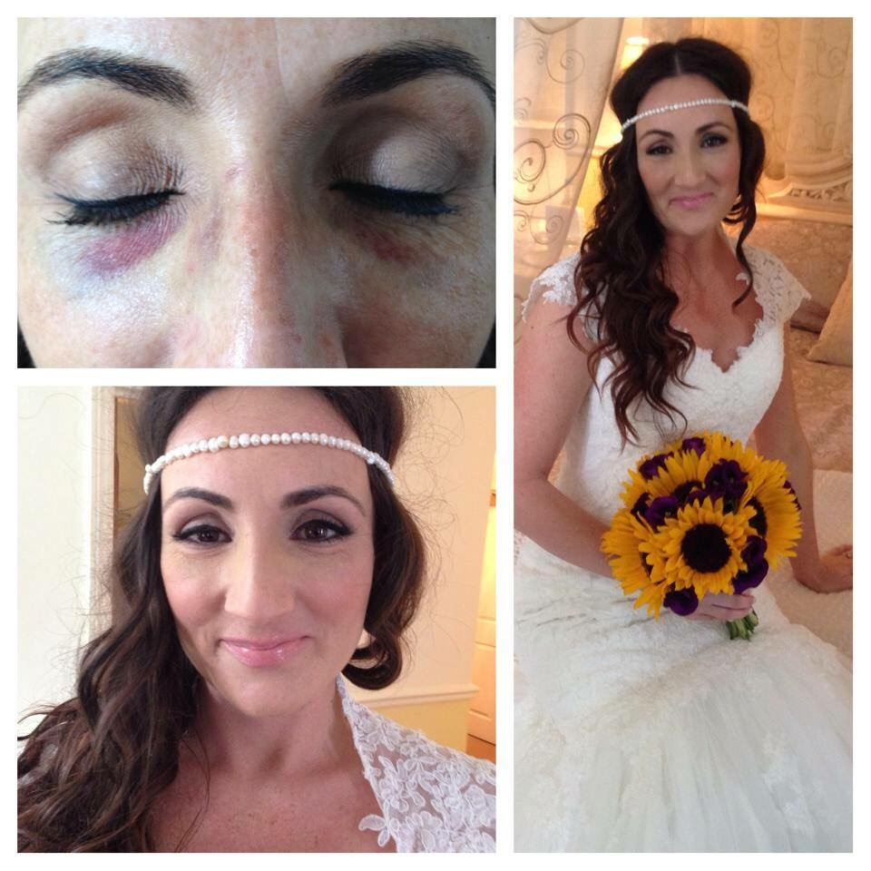 Covering up 2 bruised black eyes on my bride after being in an accident days before her big day! She was so pleased with the result.