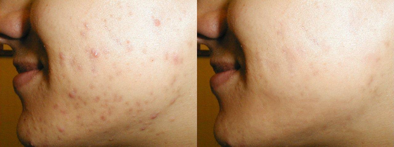 Spot/blemish removal