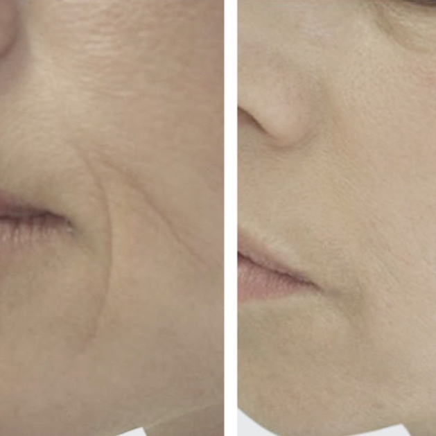 Rejuvenate - Rejuvenate is our new revolutionary facial treatment using the EVA Facial device from Endospheres Therapy. We combine the treatment with our own active ingredients to provide a total Rejuvenation treatment with simply amazing results. 100% non-invasive and clinically tested.Book in now with our Rejuvenate experts, Monika & Hannah