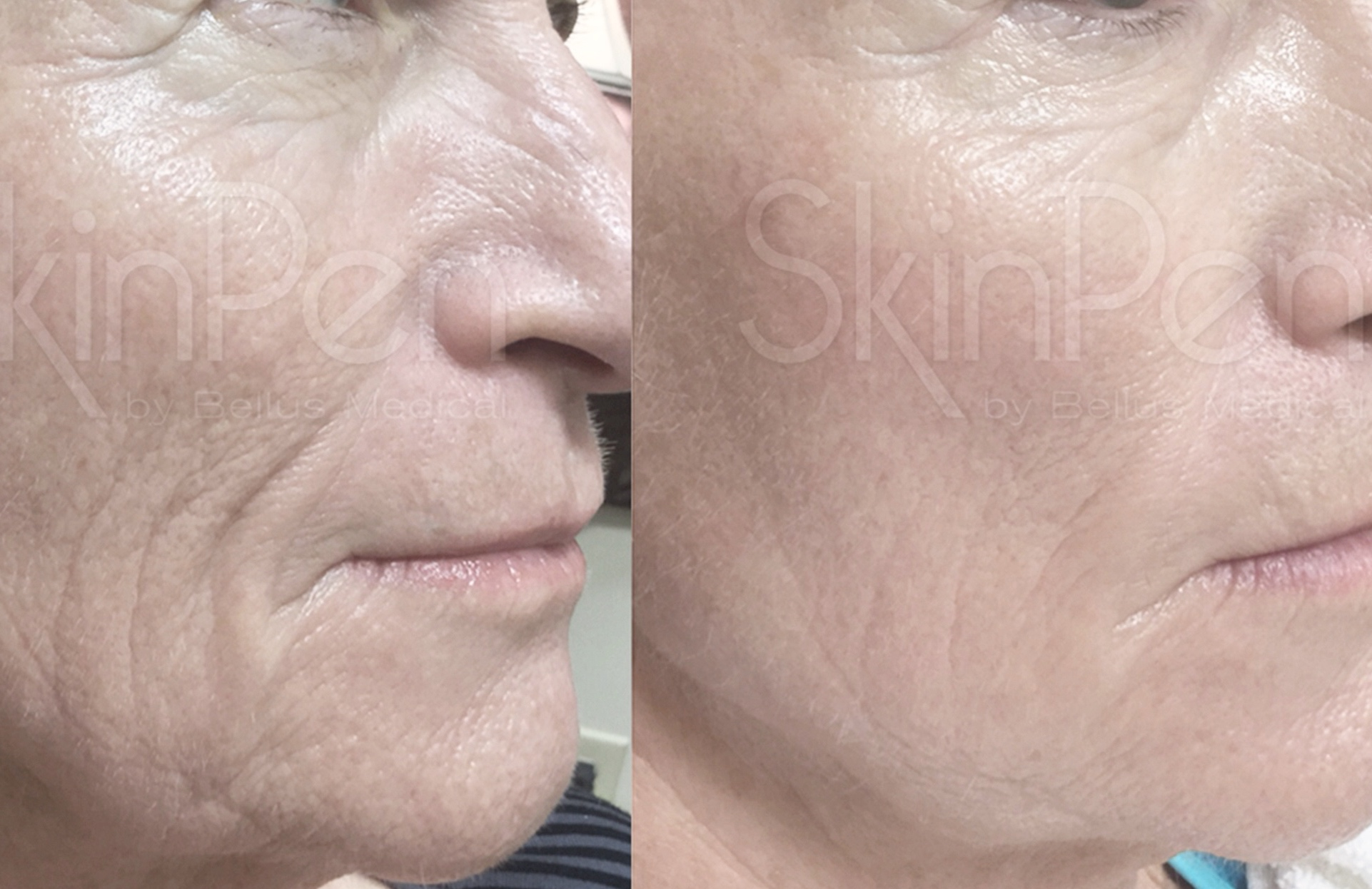 Reverse Revive Reveal - Reverse Revive Reveal is our Collagen induction therapy, also known as Microneedling. We use the FDA approved SkinPen device to organically stimulate the skin's natural ability to repair itself. This process results in the formation and remodelling of Collagen, resulting in more youthful smoother and tighter looking skin.