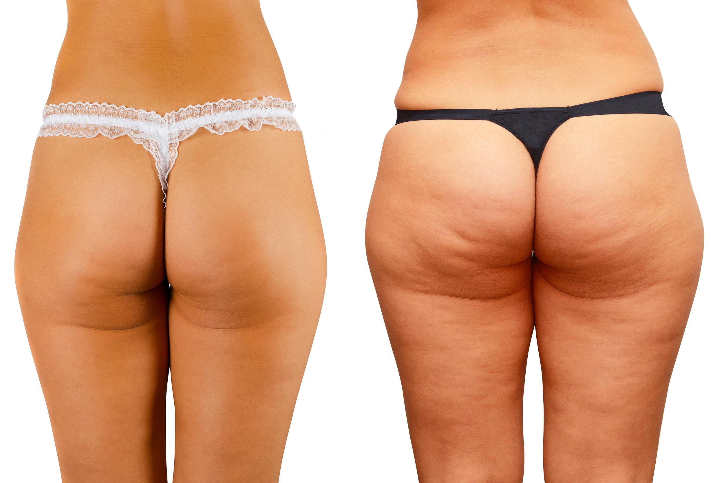 Cellulite Grade 1 to 3