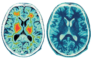 brain_meditation.png