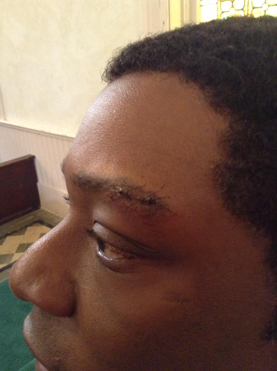 Eyebrow cut