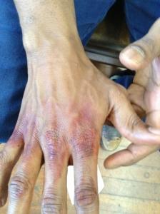 Hand bruising