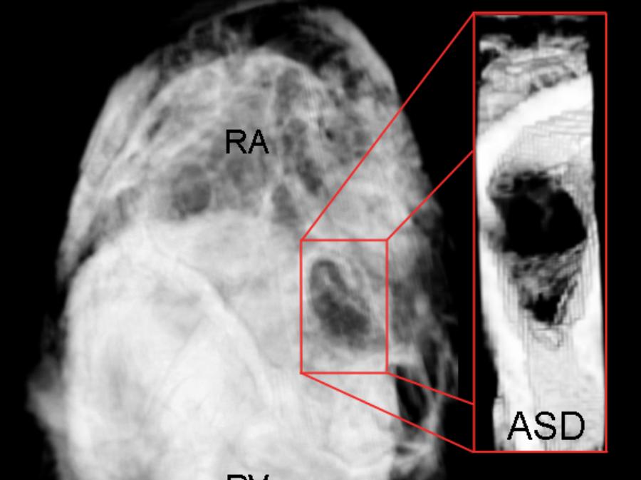 ASD MRI.png