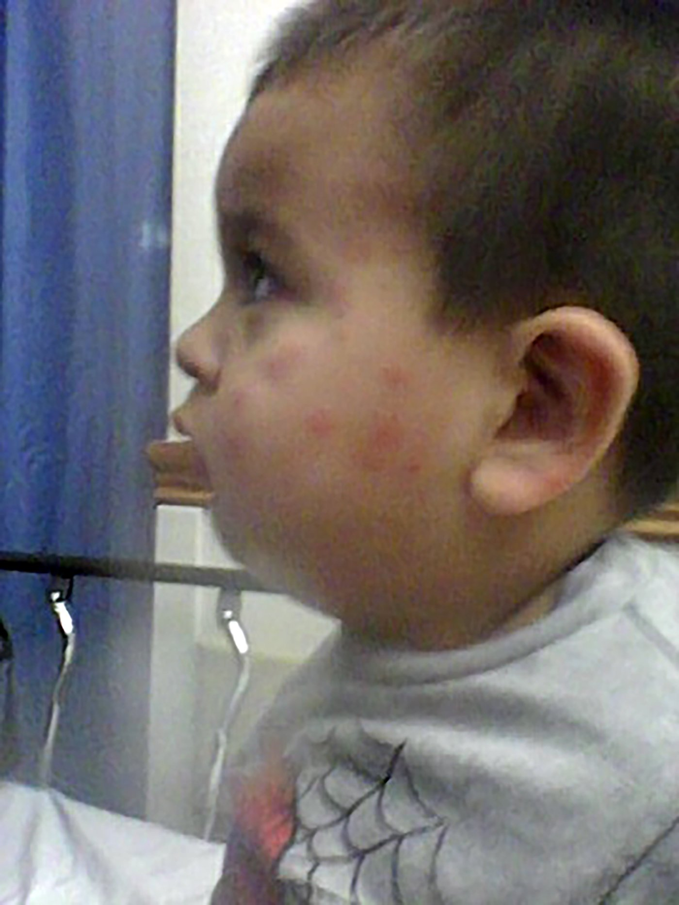 Jorge Maravilla's body was covered in bug bites as his parents battled an infestation that lasted for months. A civil jury awarded his family $1.6 million on Monday. Credit via Brian Virag