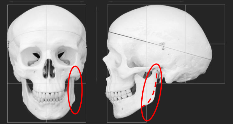 The dotted line is how the jaw appears as you age - much smoother and less defined.