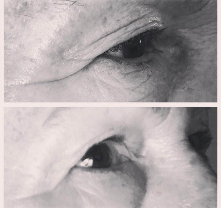 Plasma BT elderly woman eye.jpg