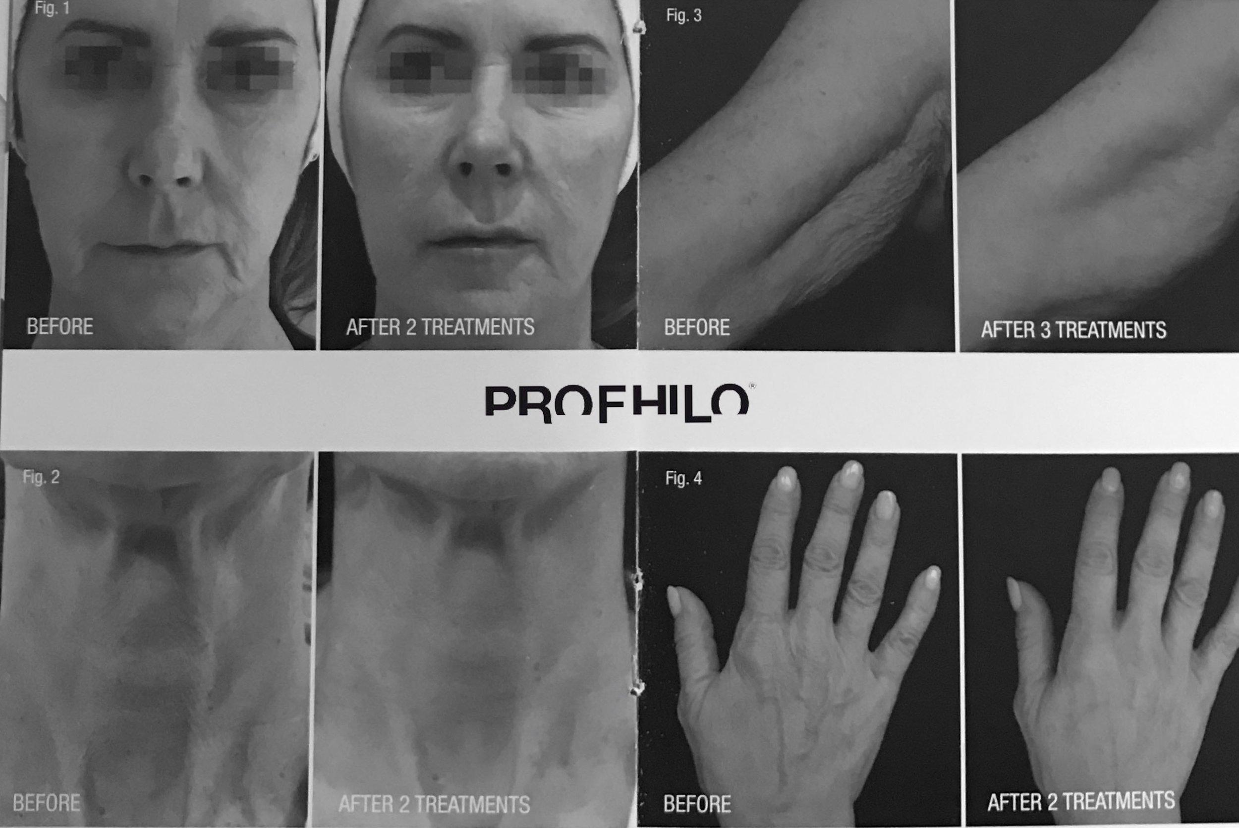 profhilo results final.jpg