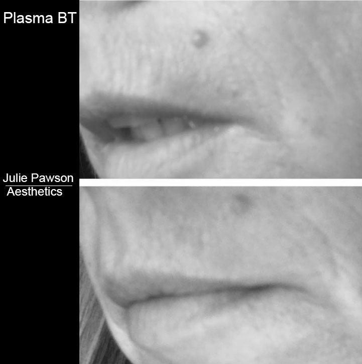 PLASMA BT 3.JPG