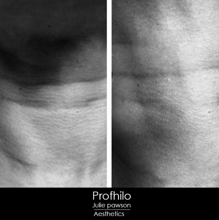 profhilo neck results.JPG