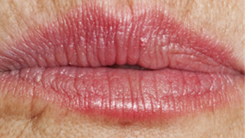 lip-lines-and-fulliness-2.png