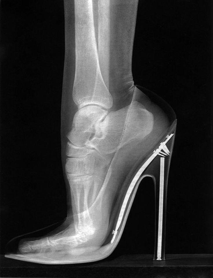 radiografia tacco alto
