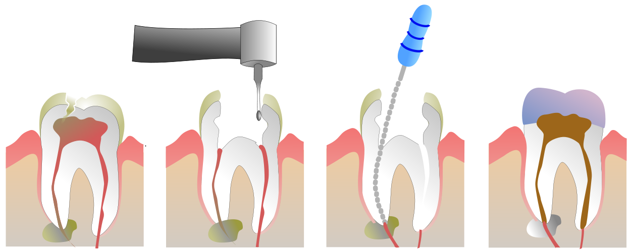 Chico Dentist Root Canal.png