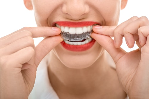 A young woman with bright red lipstick putting on her Invisalign trays