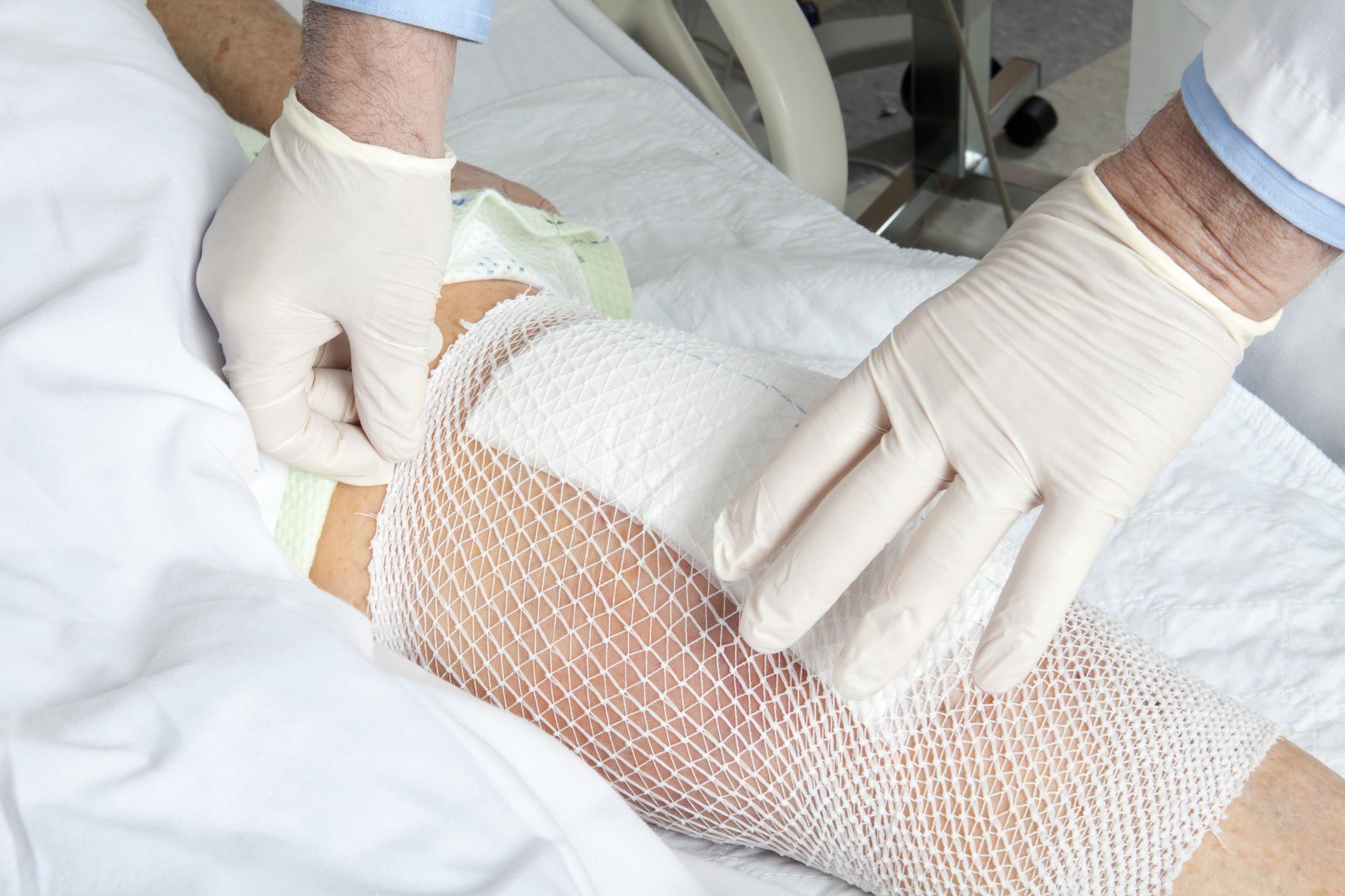 Knee infection.jpg