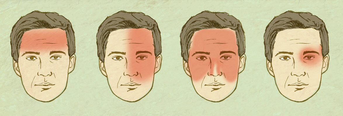 Headache Chart - JD279