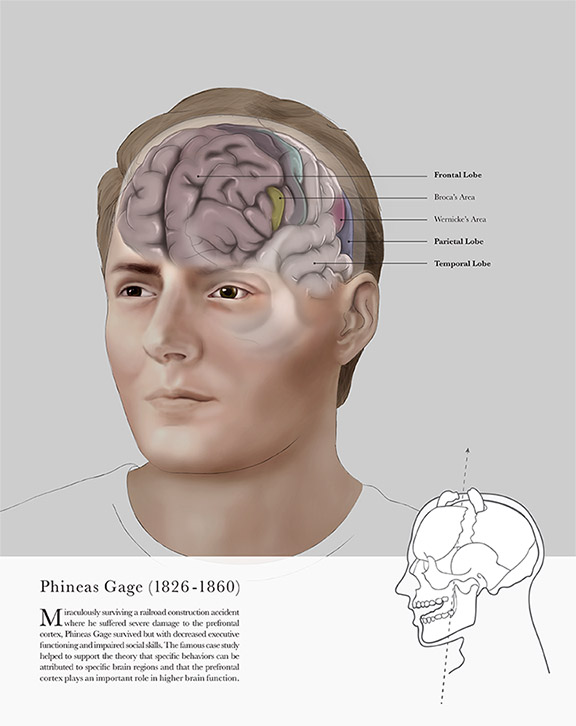 Phineas Gage - JD368