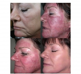Post Laser Treatment - 3 LIGHTWAVE (Red/IR Combo) Sessions over 1 week